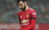 2 phương án giúp Man Utd thoát khỏi hội chứng 'Bruno Dependencia'