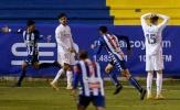Real Madrid bị sỉ nhục, Zidane vẫn không thấy xấu hổ