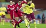 5 điểm nhấn sau trận Liverpool 0-1 Burnley: Khuôn mặt mới, câu chuyện cũ