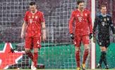 Robert Lewandowski không thể là lý do biện hộ cho Bayern Munich