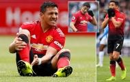 Chuyên gia giải thích nguyên nhân khiến Sanchez thất bại tại Man Utd