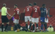 'Tội đồ' Southampton ân hận sau tấm thẻ đỏ ở trận gặp Man Utd