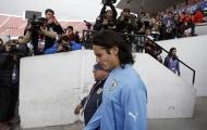 Copa America 2015: Uruguay trước nguy cơ mất họng súng Cavani
