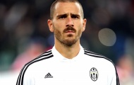 Juventus cấm sao lên tuyển Itallia