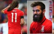 Tóc tai luộm thuộm, Bale bị đồng đội gọi là Tarzan