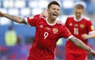 Những niềm hy vọng của Nga cho một kỳ World Cup thăng hoa