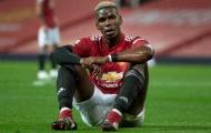 CĐV Man Utd: 'Pogba 2.0; Chúng ta sẽ mua lại cậu ấy với giá 100 triệu'