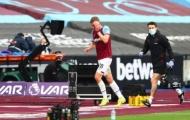Khuôn mặt đẫm máu, sao West Ham vẫn cười toe toét