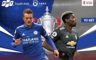 Hàng tiền vệ thiếu chất lượng, MU xứng đáng bị loại ở FA Cup?