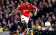 'Các cầu thủ Man Utd mang hội chứng Theo Walcott'